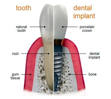 Dental Implant Pasadena Texas Dentist